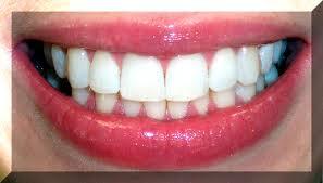 how to achieve white teeth